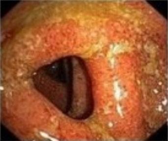 Trattamento Rettocolite Ulcerosa Cronica - Dr. Alessandro Sturiale Chirurgo generale e proctologo
