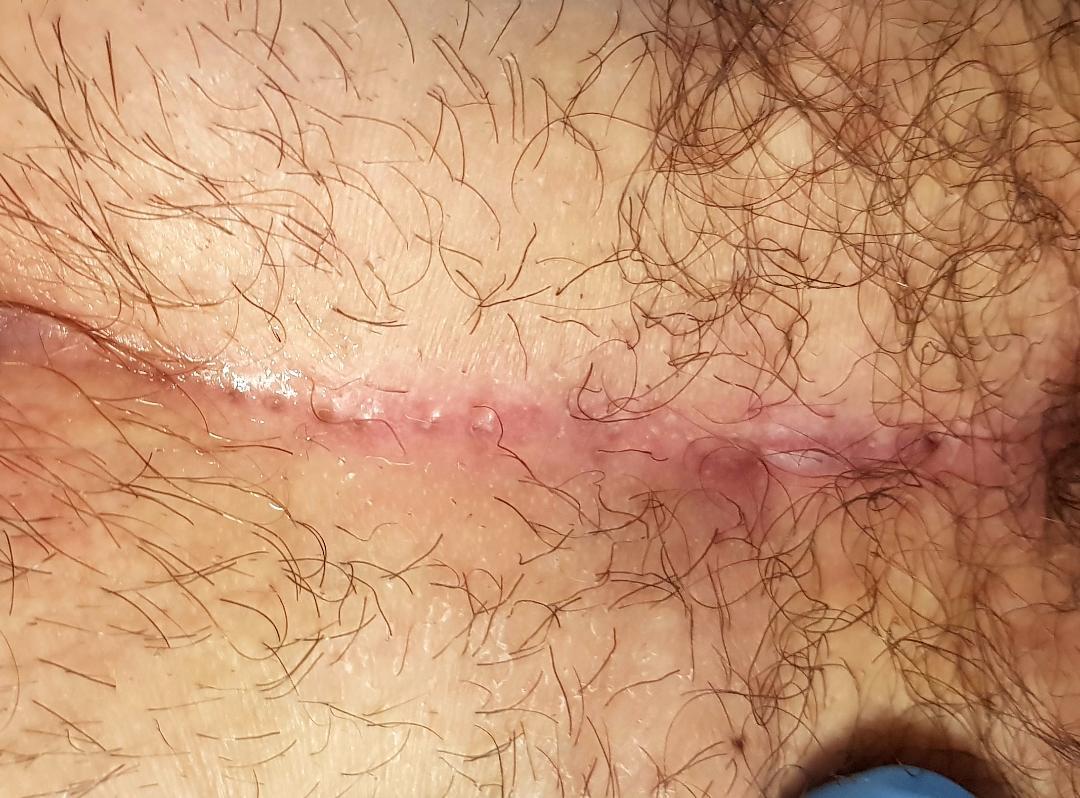 Approccio chirurgico alla cisti cilonidale del Dr. Alessandro Sturiale